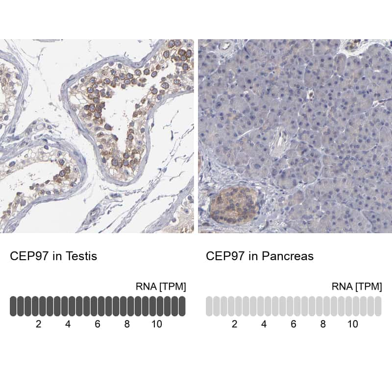 CEP97 Antibody in Relative expression