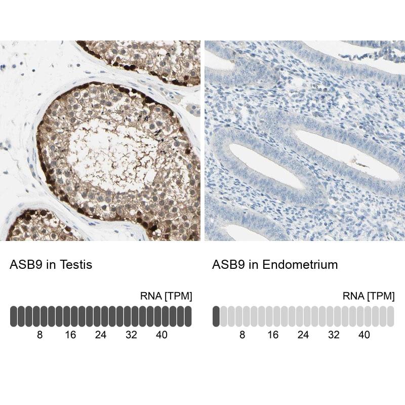 ASB9 Antibody in Immunohistochemistry (IHC)