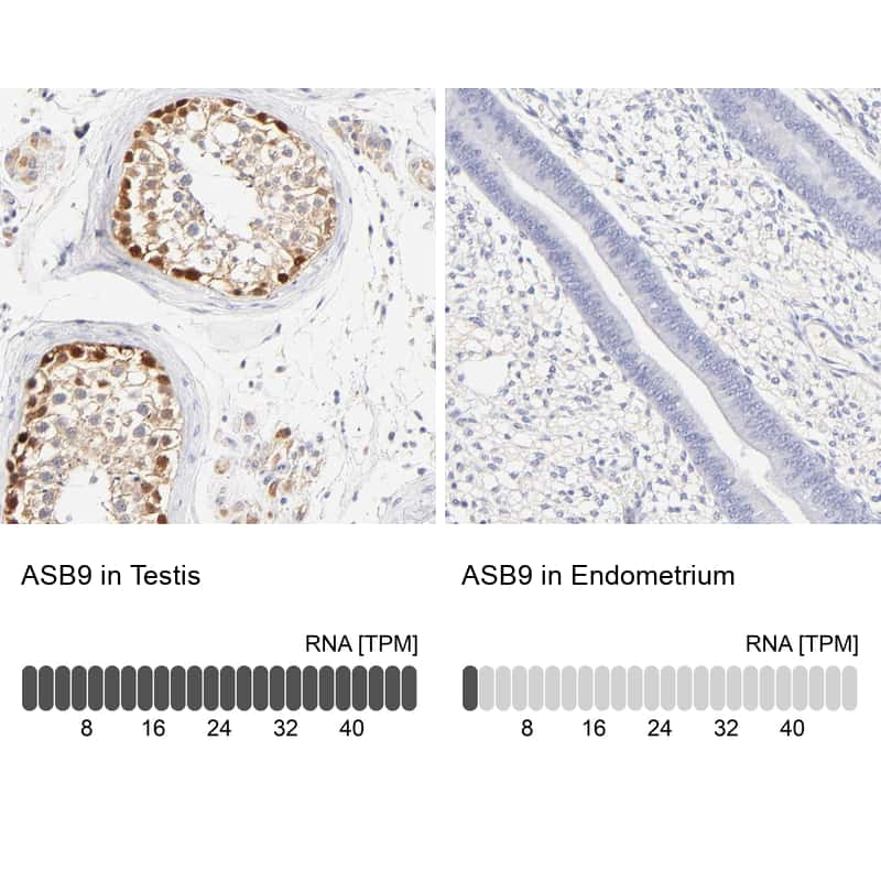 ASB9 Antibody in Relative expression