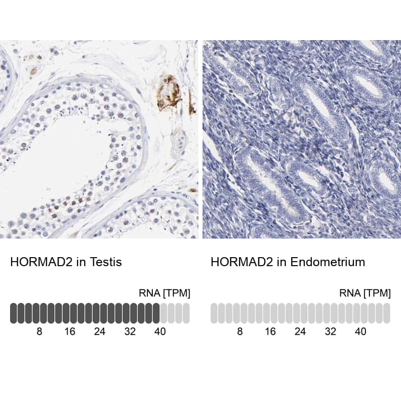 HORMAD2 Antibody in Relative expression