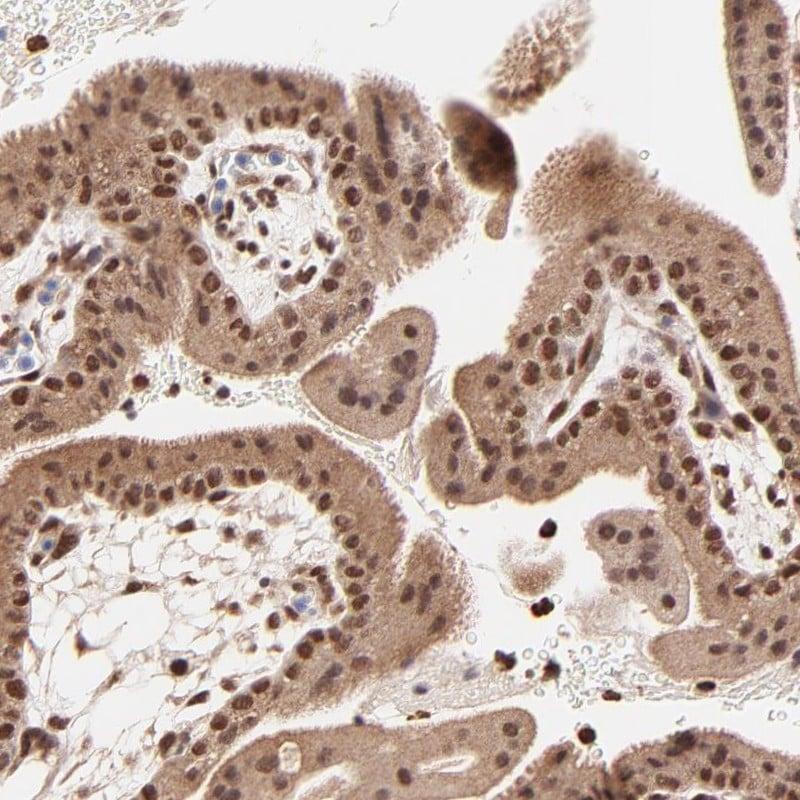 MED12 Antibody in Immunohistochemistry (IHC)