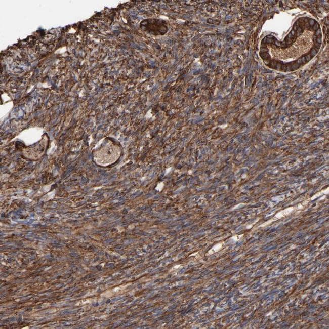 CILP Antibody in Immunohistochemistry (IHC)