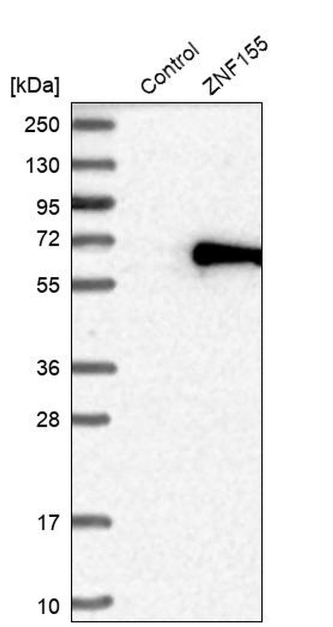 ZNF155 Antibody in Western Blot (WB)