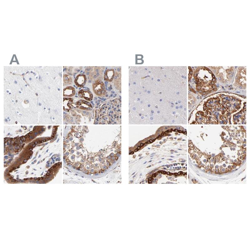 CD2AP Antibody in Immunohistochemistry (IHC)