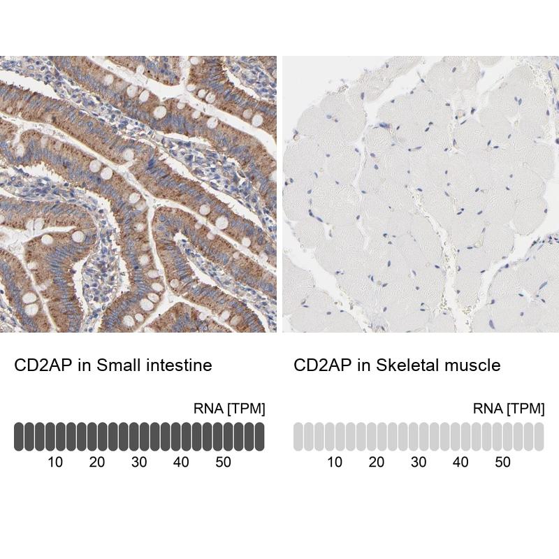 CD2AP Antibody in Relative expression