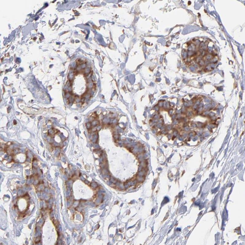 RPL9 Antibody in Immunohistochemistry (IHC)