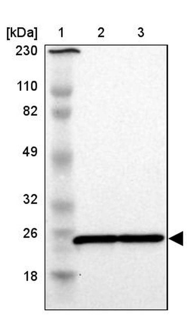 RPL9 Antibody in Western Blot (WB)