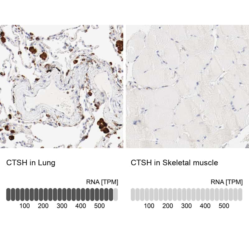 Cathepsin H Antibody in Immunohistochemistry (IHC)