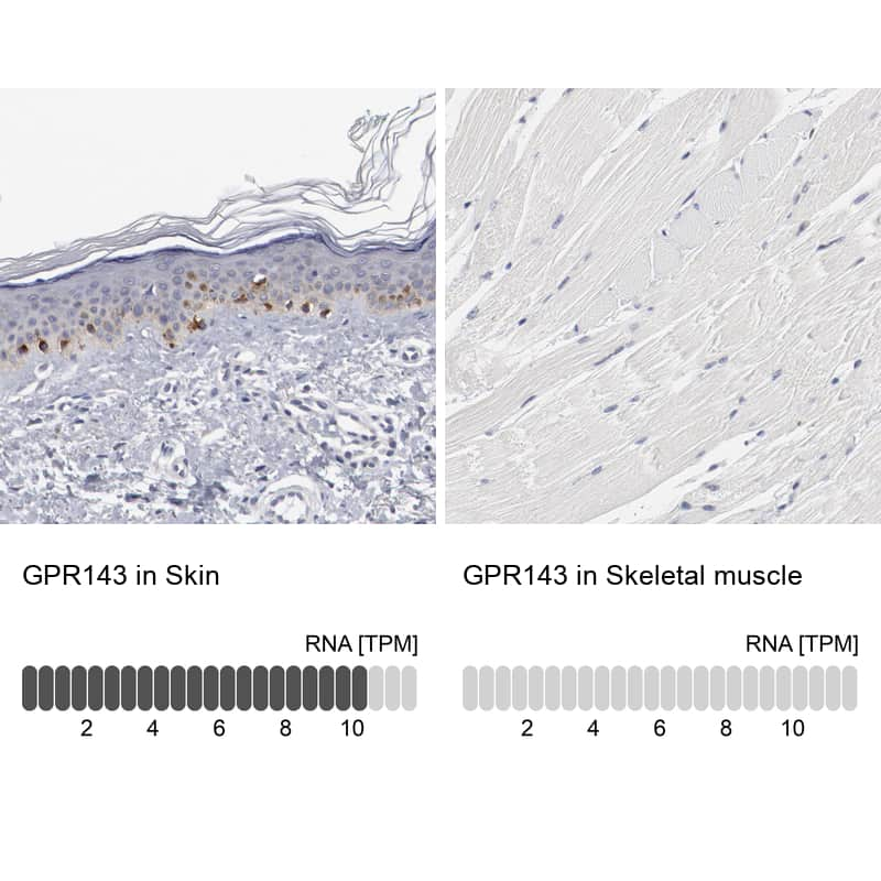 GPR143 Antibody in Relative expression