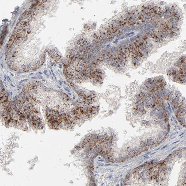 POMT2 Antibody in Immunohistochemistry (IHC)