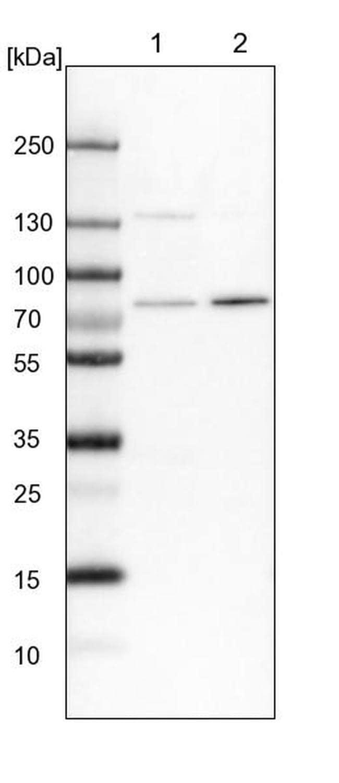 POMT2 Antibody in Western Blot (WB)