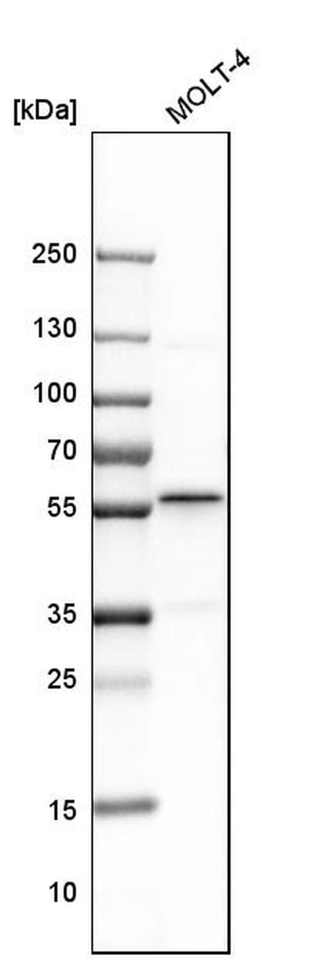 BAF57 Antibody in Western Blot (WB)