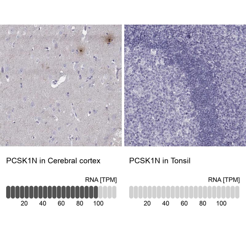 PCSK1N Antibody in Relative expression