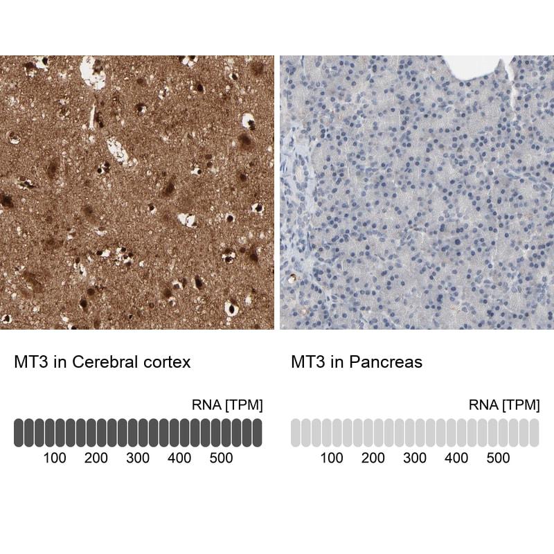 MT3 Antibody in Immunohistochemistry (IHC)