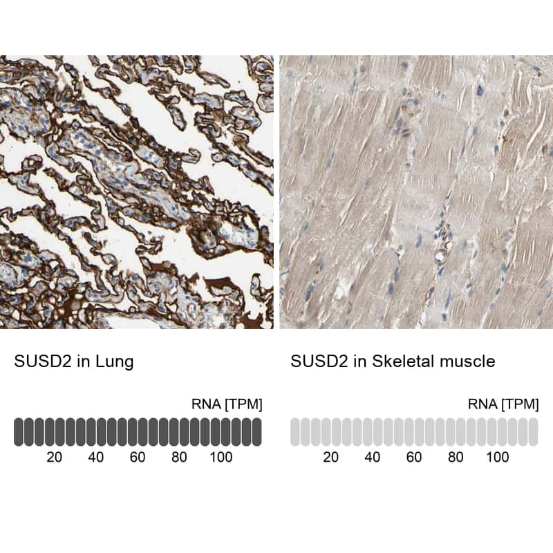SUSD2 Antibody in Relative expression