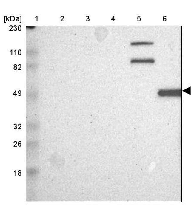 Calpain 10 Antibody in Western Blot (WB)