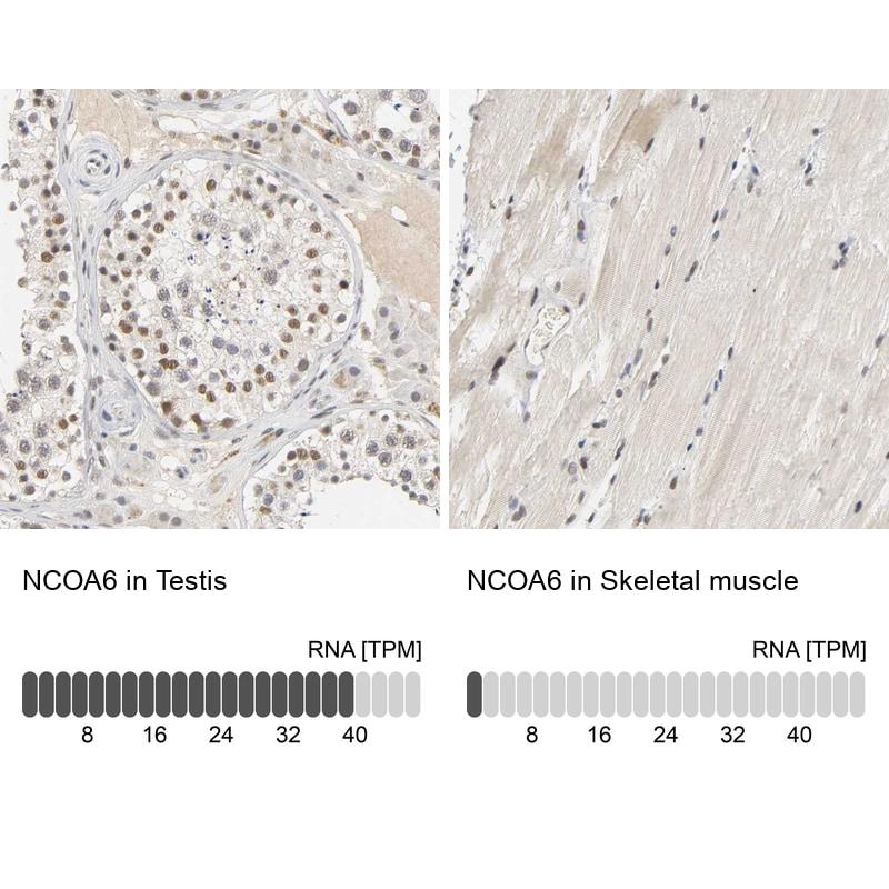NCOA6 Antibody in Immunohistochemistry (IHC)