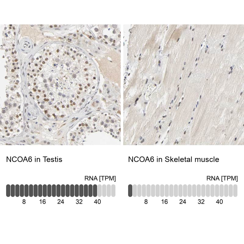 NCOA6 Antibody in Relative expression