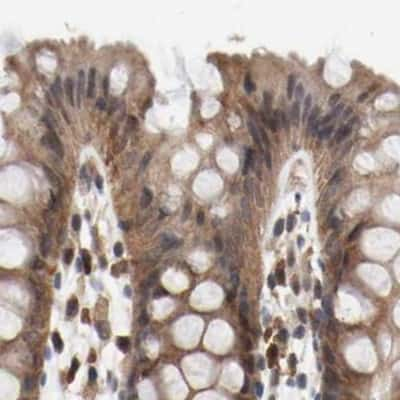 AFG3L2 Antibody in Immunohistochemistry (IHC)