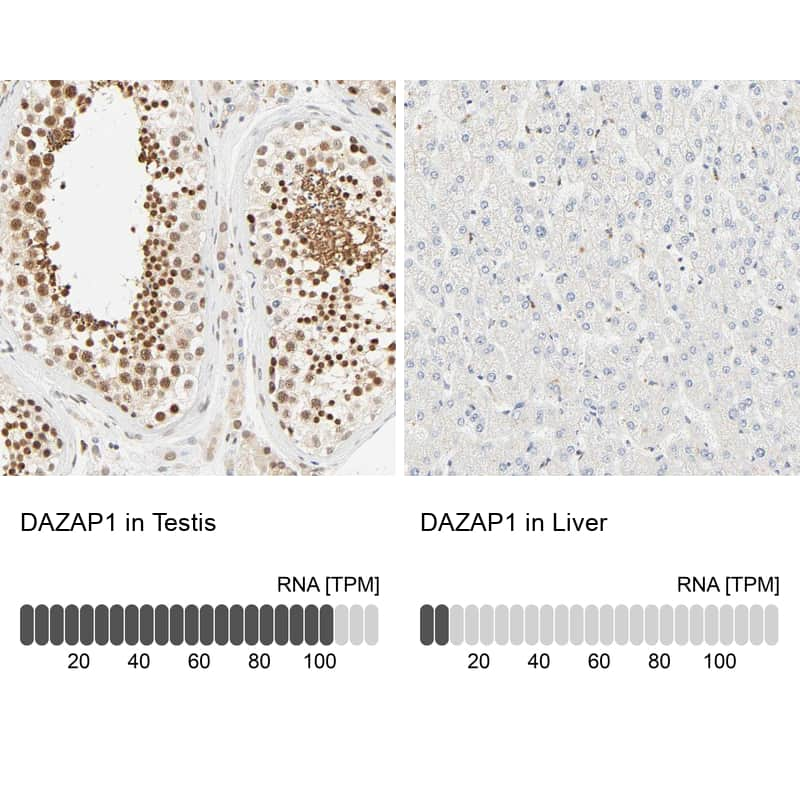 DAZAP1 Antibody in Immunohistochemistry (IHC)