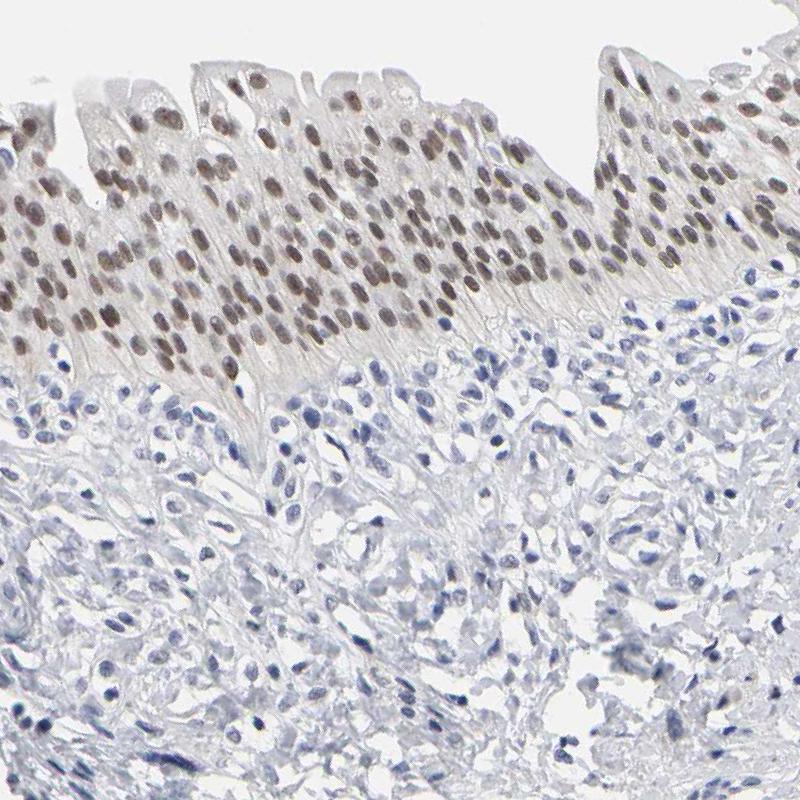GRHL2 Antibody in Immunohistochemistry (IHC)