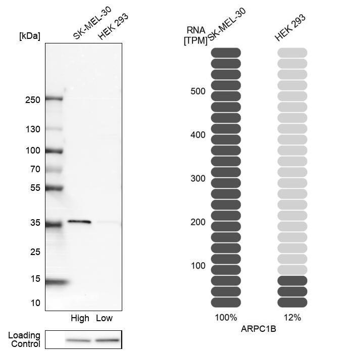 p41-ARCb Antibody in Relative expression