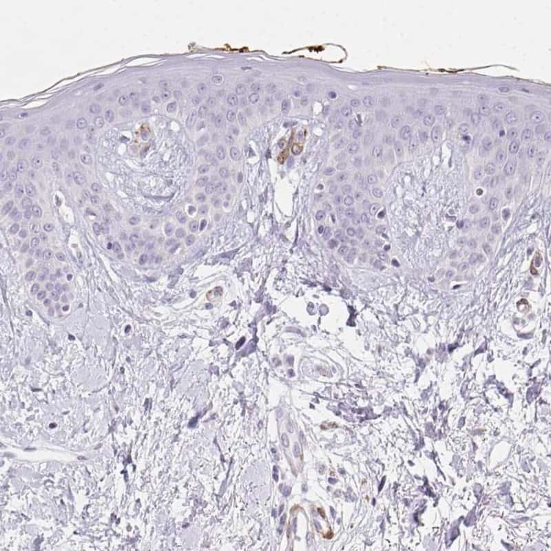 HRC Antibody in Immunohistochemistry (IHC)