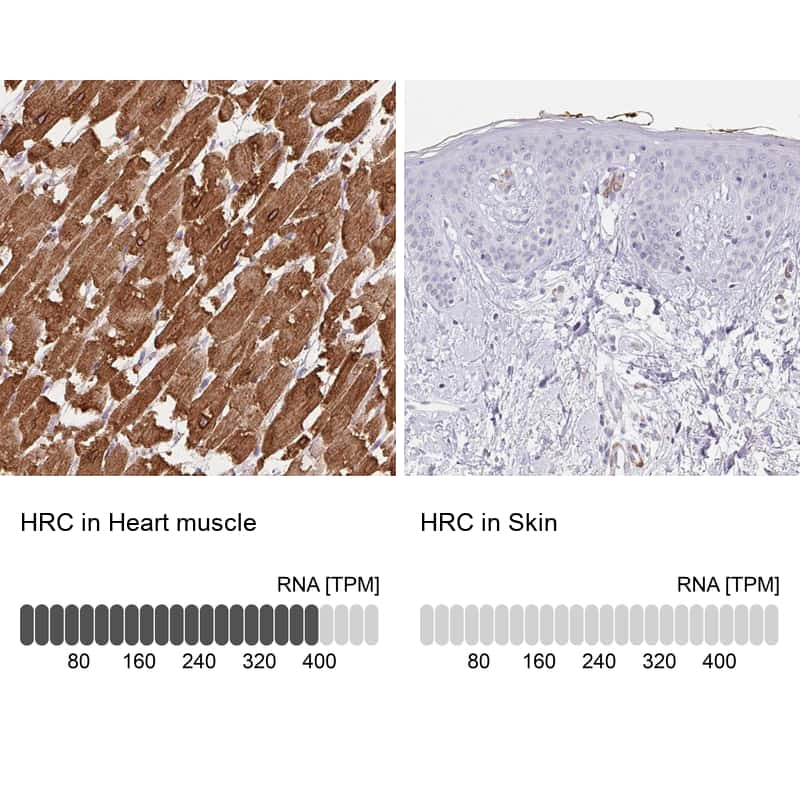 HRC Antibody in Relative expression