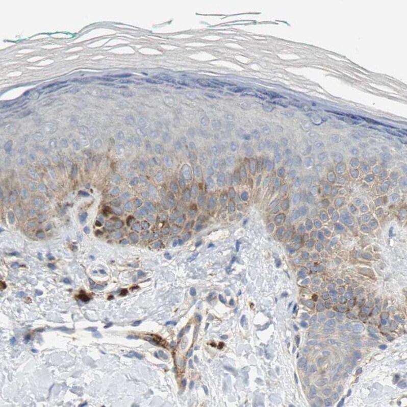 MFI2 Antibody in Immunohistochemistry (IHC)