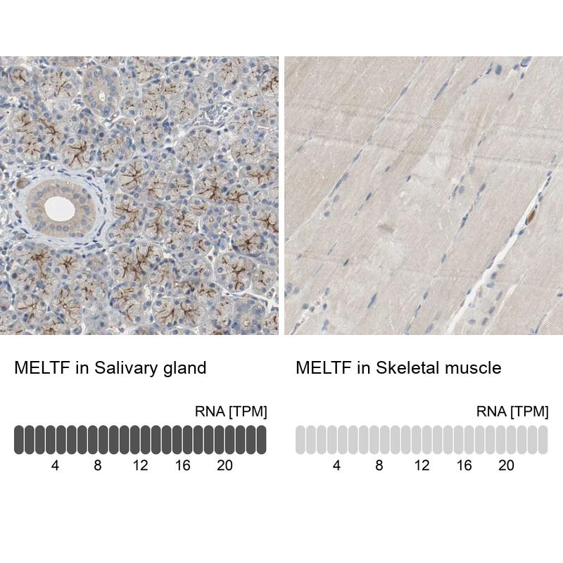 MFI2 Antibody in Relative expression