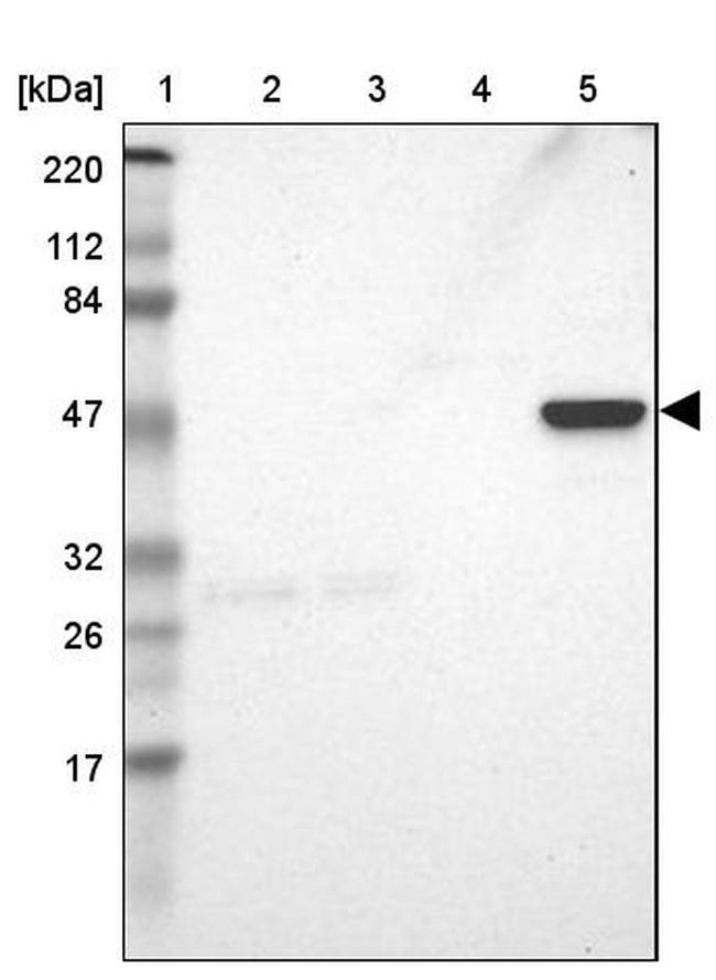 ZNF701 Antibody in Western Blot (WB)