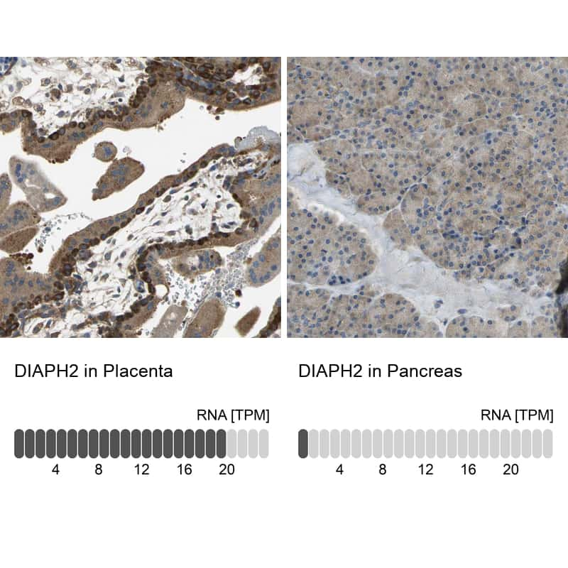 DIAPH2 Antibody in Relative expression