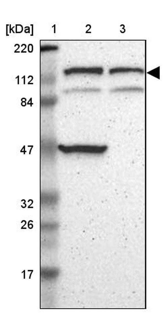 DIAPH2 Antibody in Western Blot (WB)