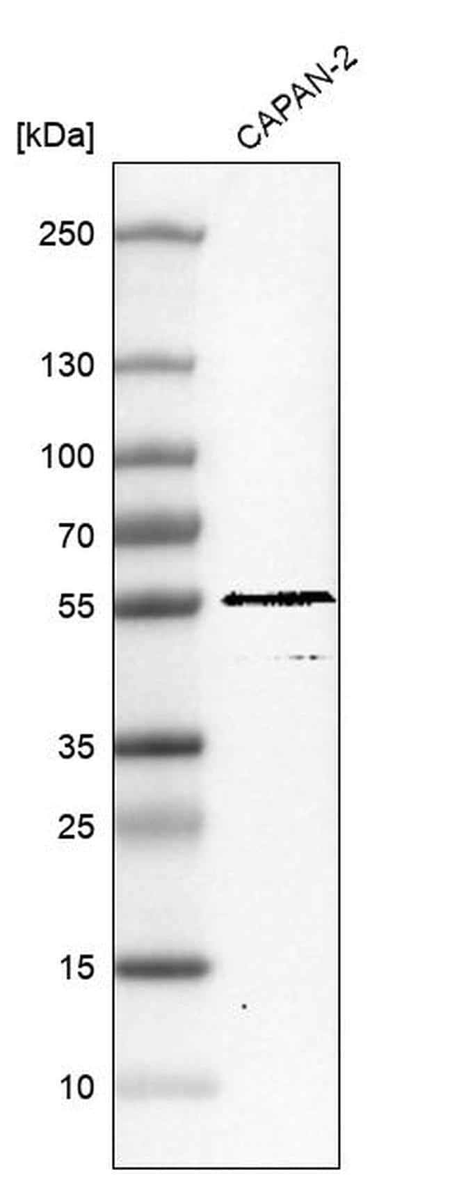 TRIM21 Antibody in Western Blot (WB)