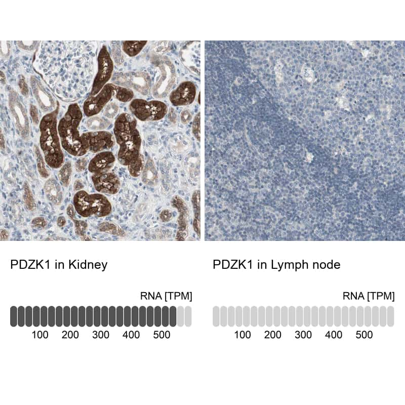 PDZK1 Antibody in Relative expression