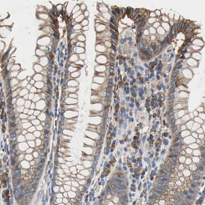 HEPH Antibody in Immunohistochemistry (IHC)