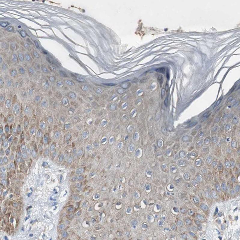 RPL35 Antibody in Immunohistochemistry (IHC)