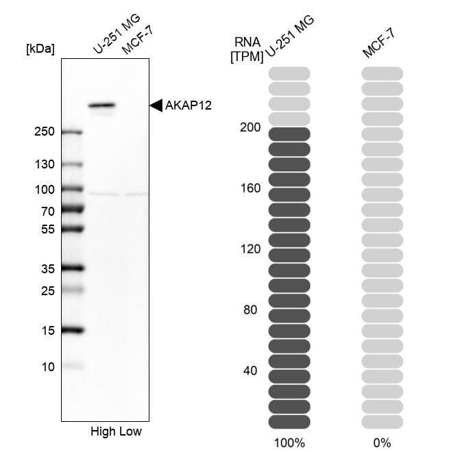 AKAP12 Antibody in Western Blot (WB)