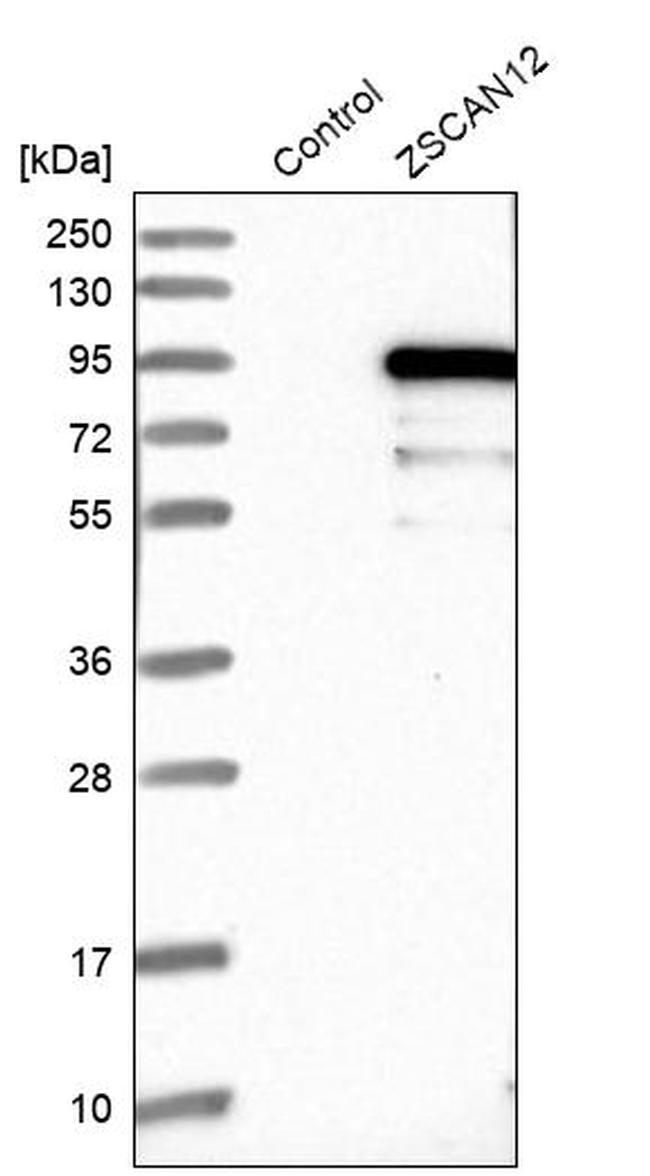 ZNF96 Antibody in Western Blot (WB)