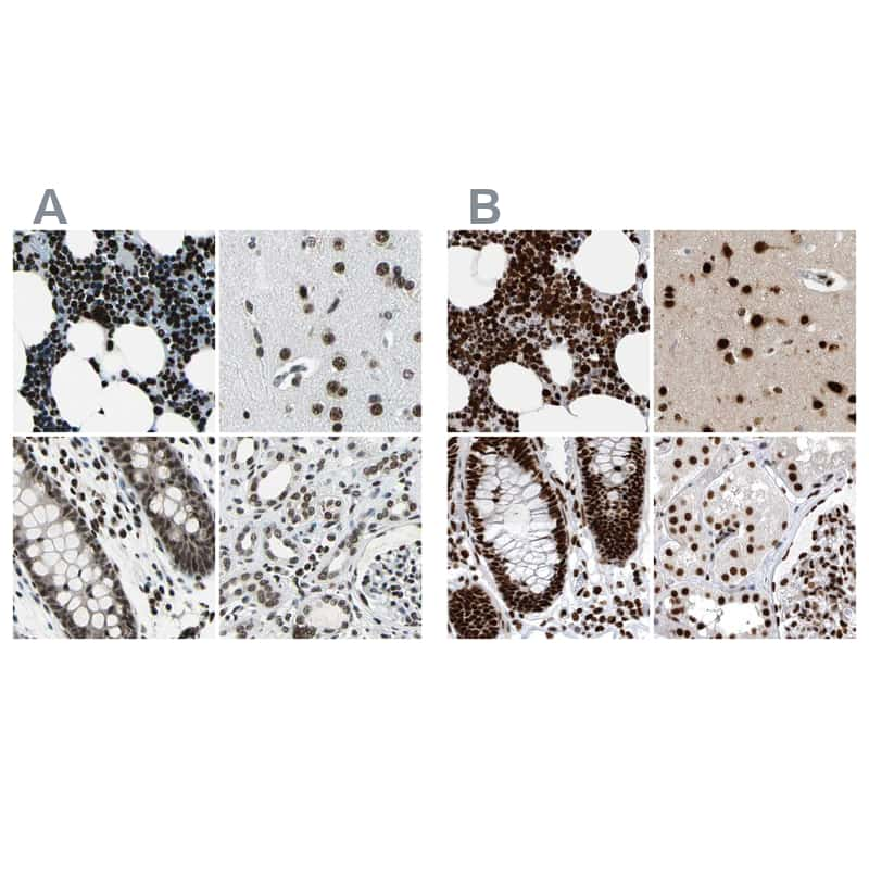 BCLAF1 Antibody in Immunohistochemistry (IHC)