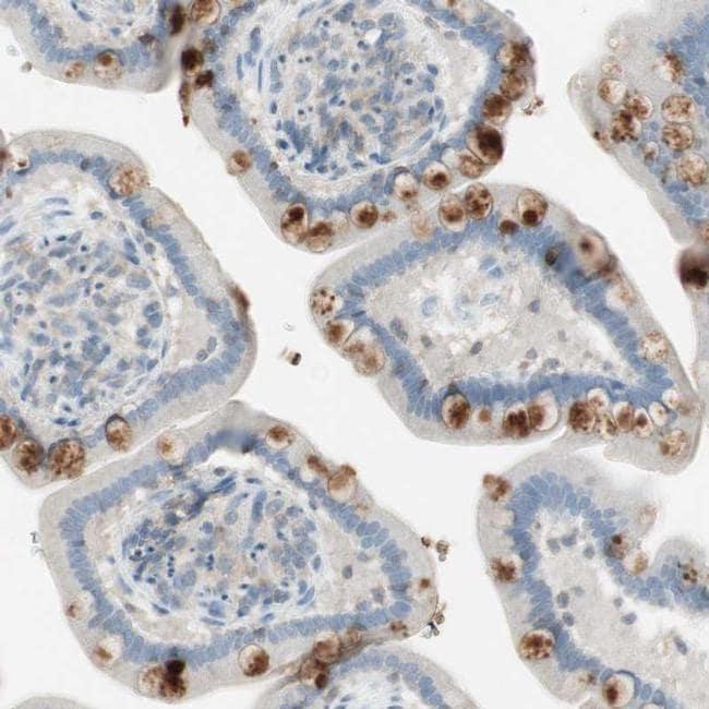 ITLN2 Antibody in Immunohistochemistry (IHC)