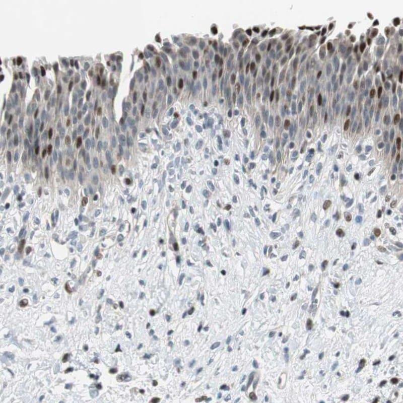 RAD1 Antibody in Immunohistochemistry (IHC)