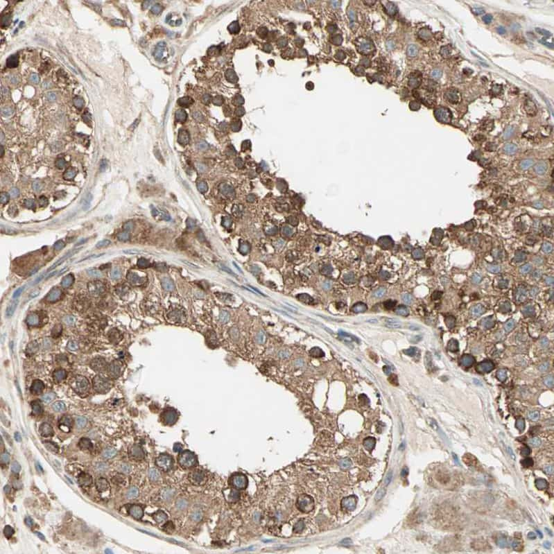 DAP5 Antibody in Immunohistochemistry (IHC)