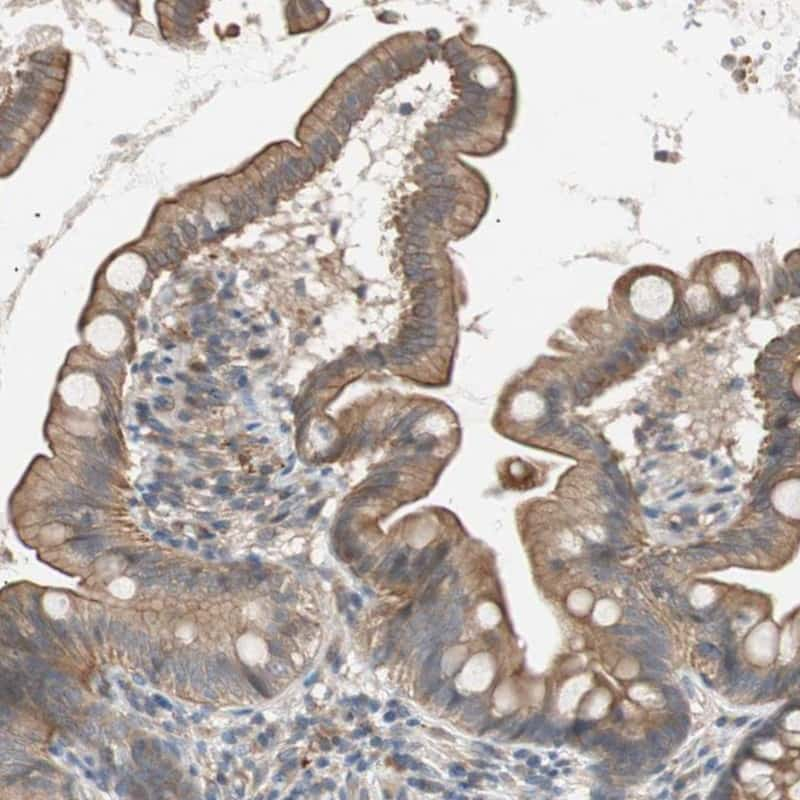 SMG1 Antibody in Immunohistochemistry (IHC)