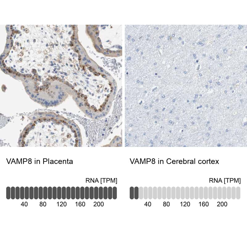 VAMP8 Antibody in Relative expression