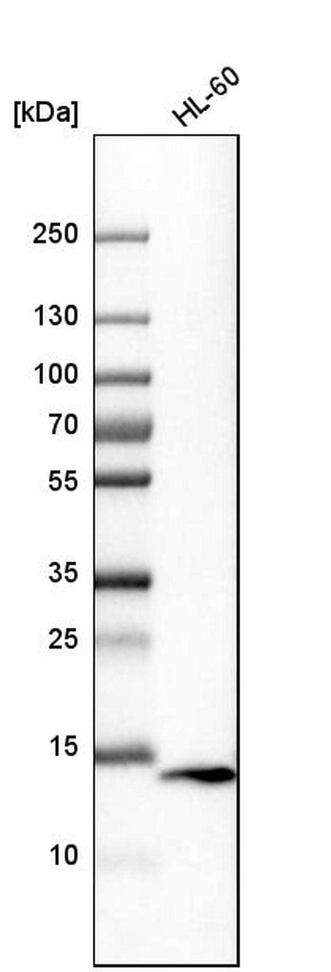 VAMP8 Antibody in Western Blot (WB)