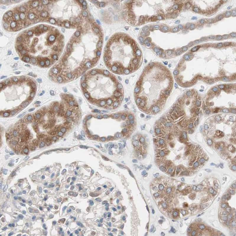 FAAH Antibody in Immunohistochemistry (IHC)