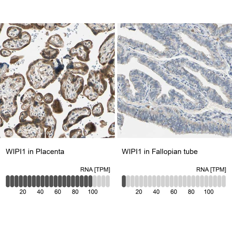 WIPI1 Antibody in Relative expression