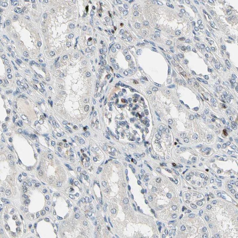 IP6K2 Antibody in Immunohistochemistry (IHC)