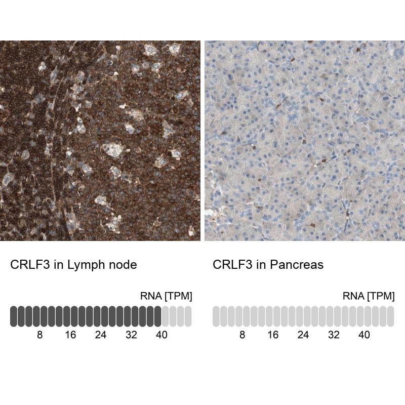 CRLF3 Antibody in Immunohistochemistry (IHC)